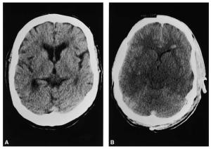 Edema cerebral en hiponatremia aguda